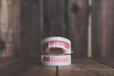 歯の食いしばりにマウスピースは必要ない